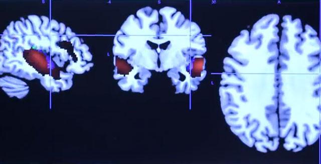 ¿El cerebro del perro se parece al humano? Más de lo que usted cree