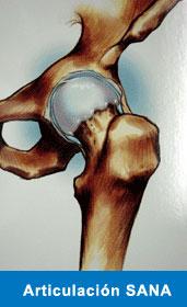 artrosis-1