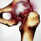 La artrosis canina
