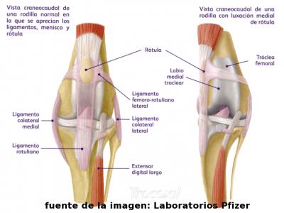 Luxación rodilla