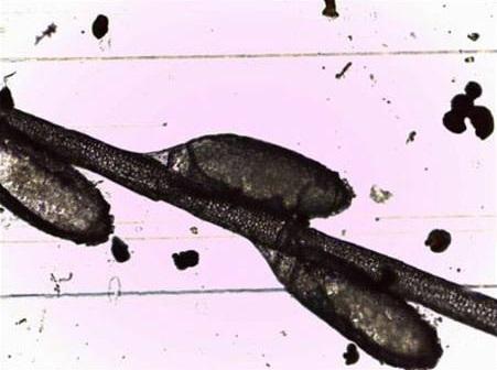 Piojos hematófagos