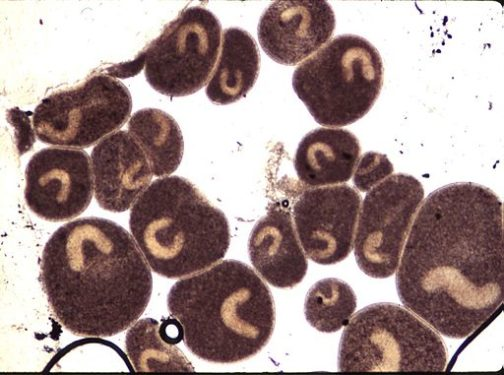 Punto Blanco en Microscopio