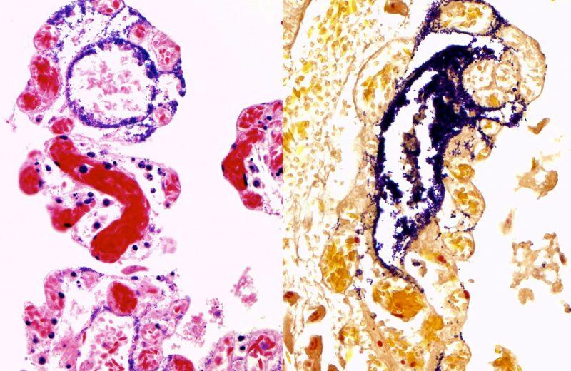 bacterias Streptococcus equi de la subespecie analizada, en color morado, invadiendo el intestino de las alpacas a través de los vasos linfáticos.