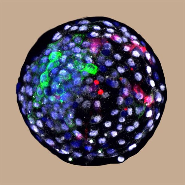 Blastocito de quimera